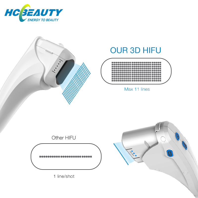 hifu machine to buy in toronto body and face treatment