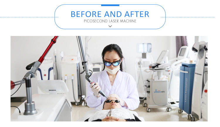 China Super Pico Tattoo Laser Removal Equipment For Sale