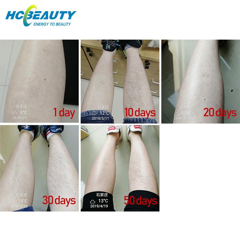 Hair removal permenent skin rejuvenation diode laser machine for sale